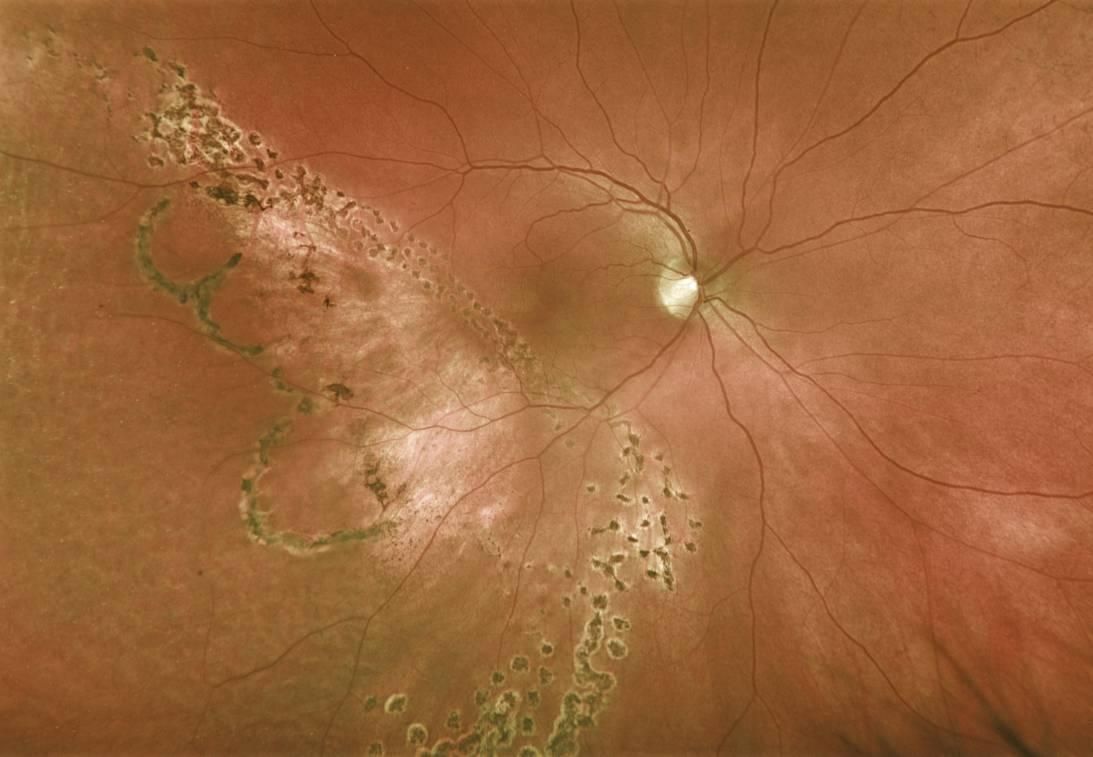 Retinal imaging photo-pdf